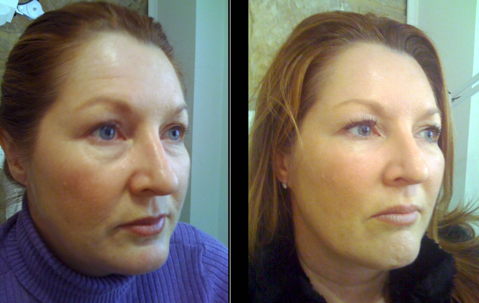 Lower face fillers before & after