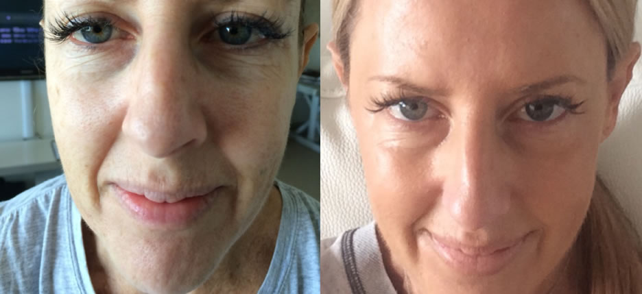 Cosmetic Skin Resurfacing before & after