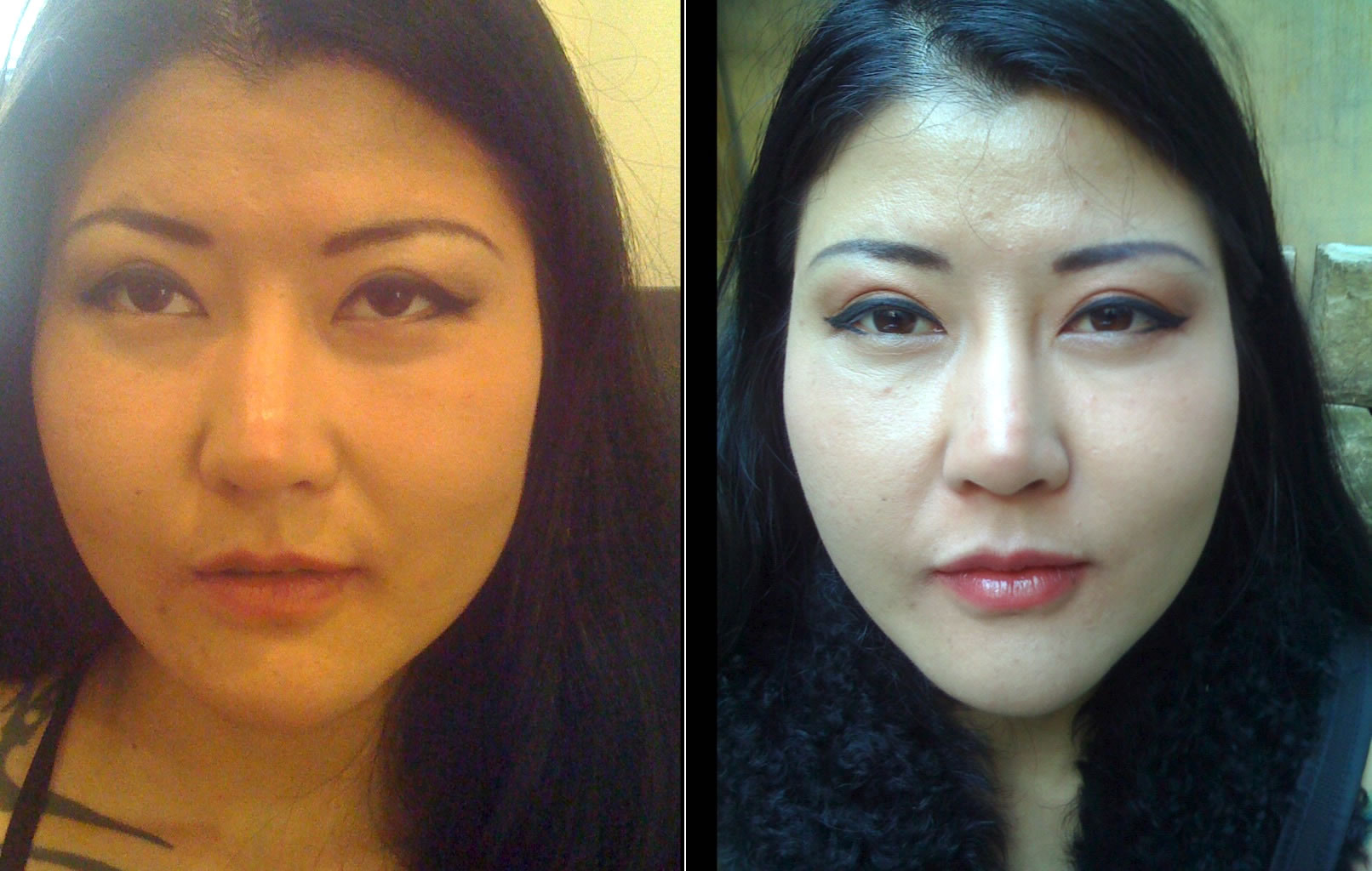 Jawline slimming using wrinkle injections