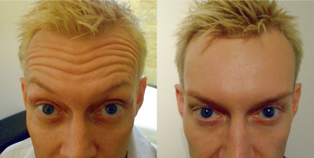 forehead lines before & after