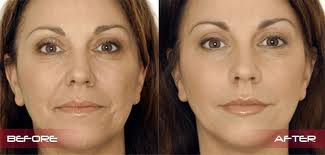 restylane dermal fillers available in Sydney